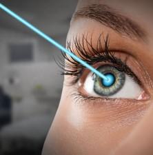 جراحی چشم لازک چیست؟