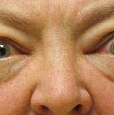 آیا تیروئید عملکرد بینایی را مختل می کند؟